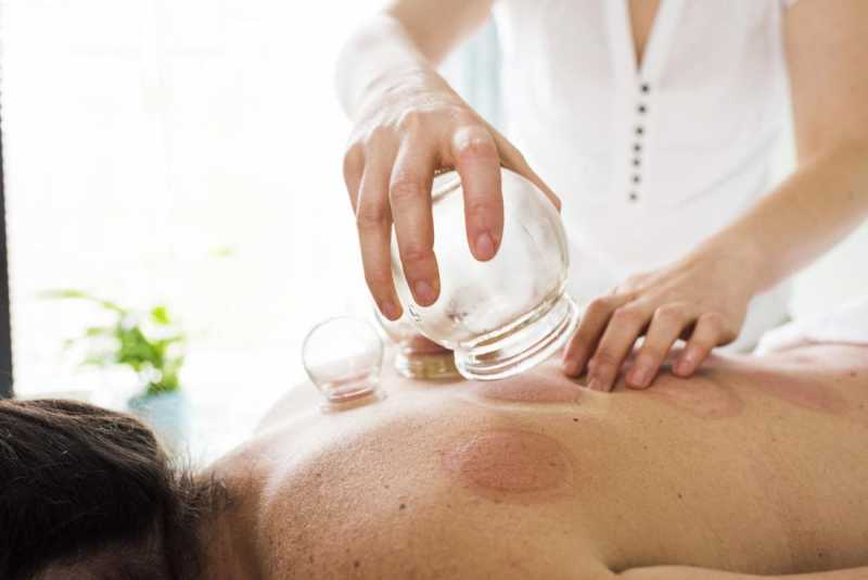 23cupping-therapy-.jpg